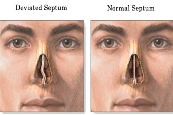 Deviated Septum vs. Normal Septum